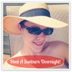 Heal A Sunburn Overnight!!!