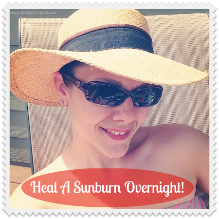 Heal A Sunburn Overnight
