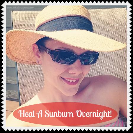 Heal A Sunburn Overnight
